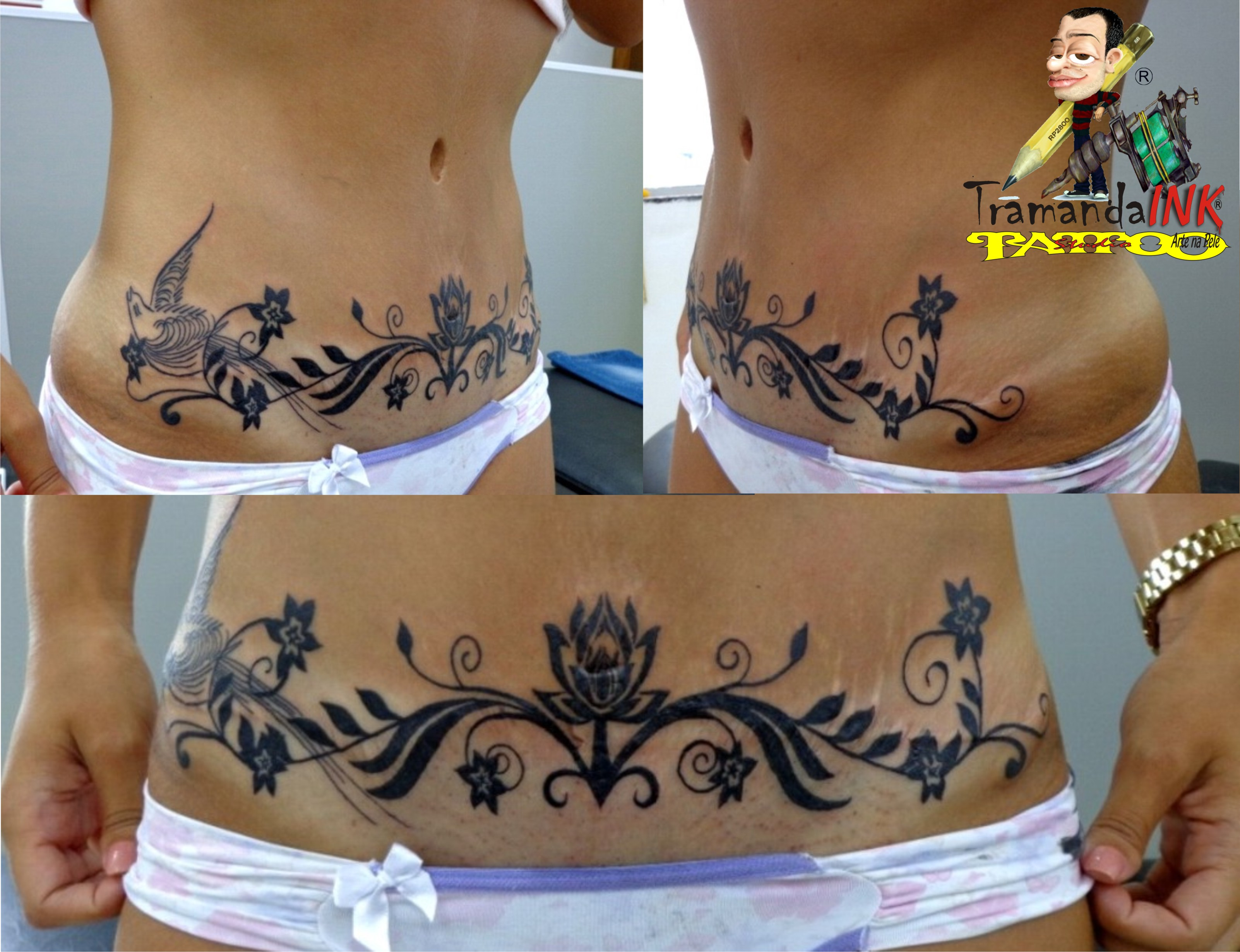 Cover up abdominoplasty tatuagens tattoo for Tattoo over tummy tuck scar